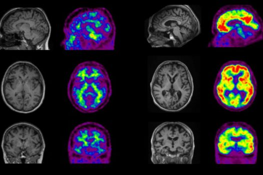 Gene therapy reverses memory loss in Alzheimer's mice